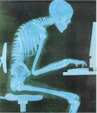 Slouching in Front of a Computer - Xray
